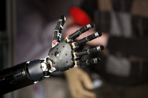 Advances in Prosthetics